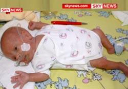 Врачам удалось выходить недоношенного малыша весом чуть более четверти килограмма