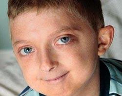 В Великобритании живет мальчик одиннадцати лет, стареющий в 5 раз быстрее своих ровесников