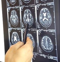 Благодаря магнитному томографу ученые из Израиля смогли найти человеческую душу