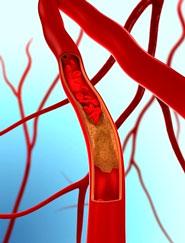 Ученые создали полноценные искусственные вены в качестве пересадочного материала
