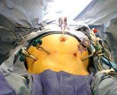 В России проведена первая операция на человеке, выполненная роботом