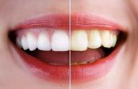 Профилактика потемнения зубов